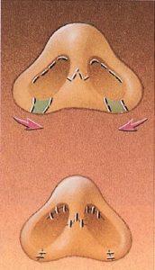 小鼻修正術