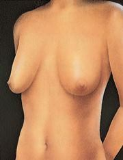 breastlift_a