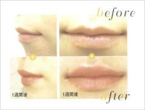 ヒアルロン酸の唇への注射