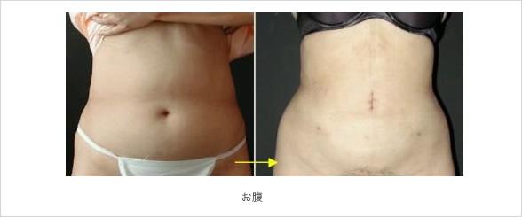 下腹部とわき腹の脂肪吸引