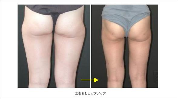 太ももと臀部の脂肪吸引