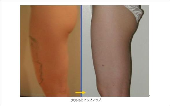 太もも(前面)の脂肪吸引