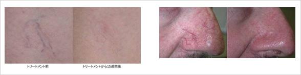 鼻の毛細血管拡張症のレーザー治療