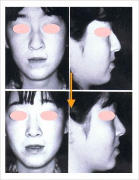鼻のコブ取り(非切開法)