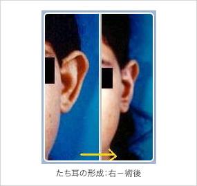 立ち耳の修正術