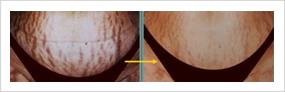 妊娠線のレーザー治療